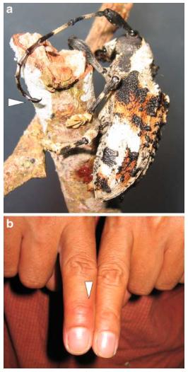 Figure 1 : Individu de Onychocerus albitarsis - a) la flèche indique l'organe piqueur au bout de l'antenne - b) la flèche indique l'endroit de la piqûre et le gonflement du doigts (Source : Barkov et al., 2008)